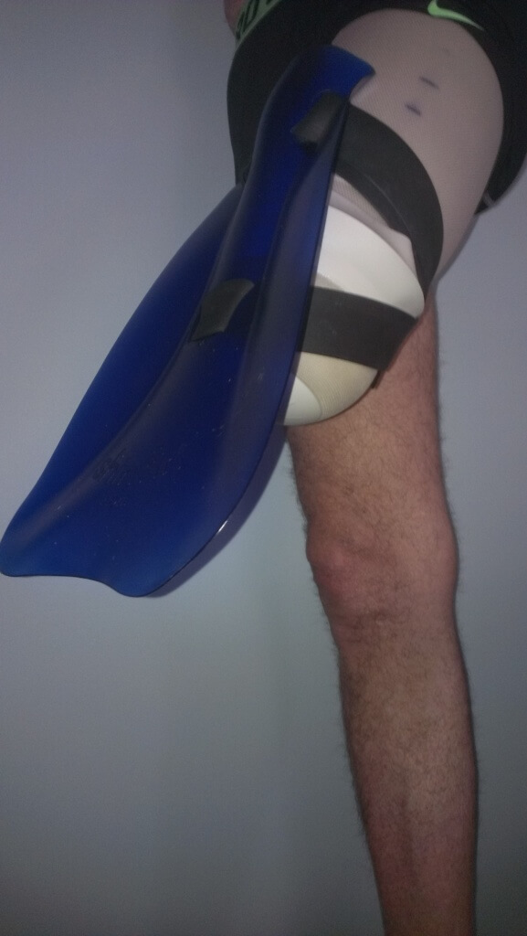 shinfin™ fin on above knee amputee thigh stump with liner
