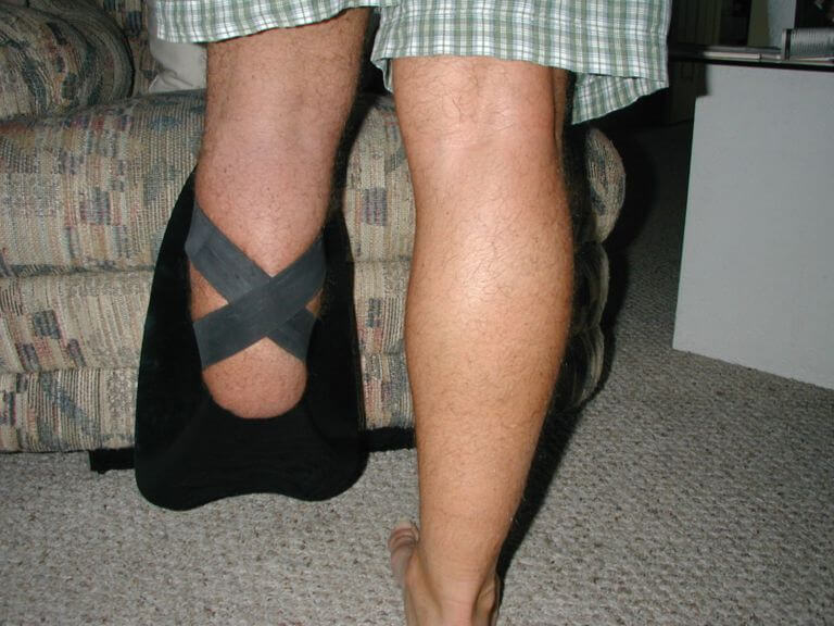 Transtibial amputee with shinfin™ fin, rear view. Used for pool swimming, snorkeling and scuba diving.